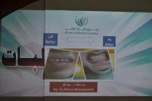محاضرة ( صحتك في ابتسامتك ) بكلية العلوم والدراسات الإنسانية بالأفلاج ( شطر الطالبات )